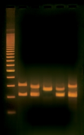 #334:  Human DNA Typing Using PCR ©Edvotek 2014